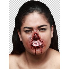 Prosthetic Wounds Chewed Nose